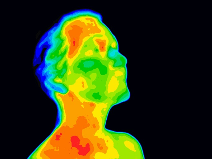 Face Thermograpy Carotid